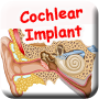 KD CochlearImplant